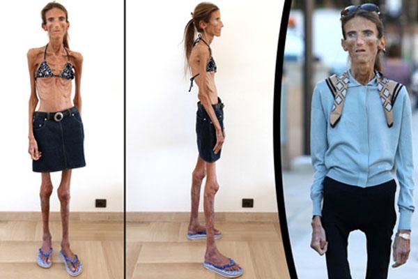 Anoreksija – bolest uma ili poremećaj u prehrani?