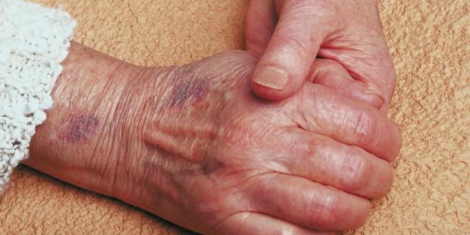 Masnice kod starijih osoba